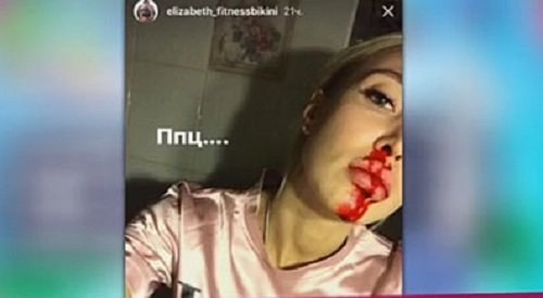 Лиза Полыгалова намекнула, что Барзиков разбил ей нос
