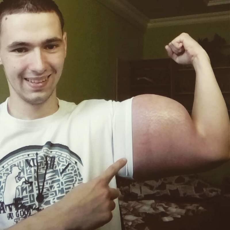 Житель Пятигорска мечтает быть фриком, а его мать боится, что он станет инвалидом