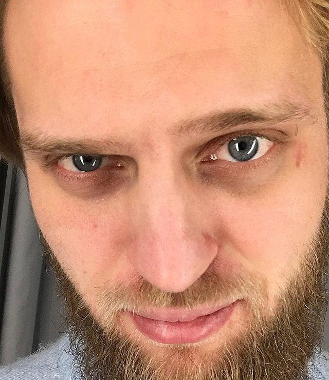 Экс-супруга Вальтера Соломенцева попала в больницу с угрозой выкидыша