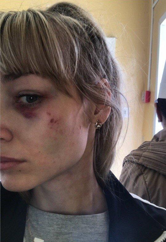 Романа Карамышева разыскивают за жестокое избиение супруги