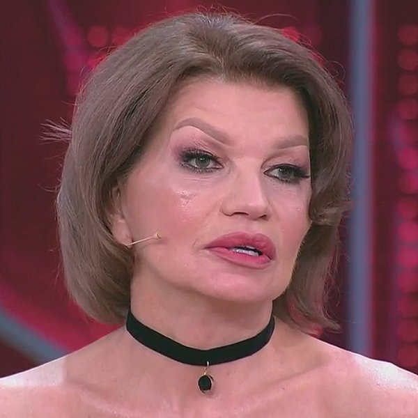 Супруга Гогена Солнцева показала результат пластической операции
